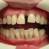 Когда человек теряет зубы?