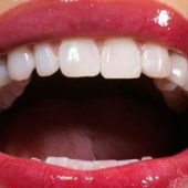 Ученые расшифровывают микрофлору в полости рта