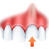 Тактика врача при смещениях зуба в результате травмы