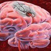 Обнаружили связь между пародонтозом и цереброваскулярными заболеваниями