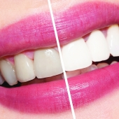 Отбеливать ли зубы?!