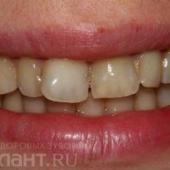 Клинический случай: реконструкция скученности во фронтальном отделе верхнего зубного ряда