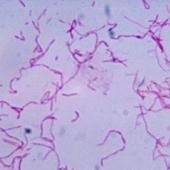 Ученые выяснили, что бактерия ротовой полости защищает опухолевые клетки от реакции иммунной системы