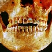 Как ученые исследуют древние стоматологические технологии